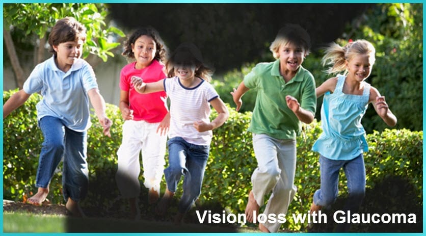 Vision Loss with Glaucoma